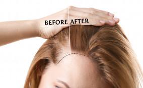 Patch capelli