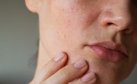 cause dell'acne