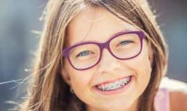 apparecchio denti, apparecchio per bambini
