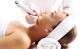microneedling, rughe, trattamento