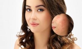 cicatrici da acne, pelle, rimedi naturali
