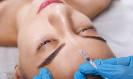 rughe sulla fronte, medicina estetica, chirurgia plastica