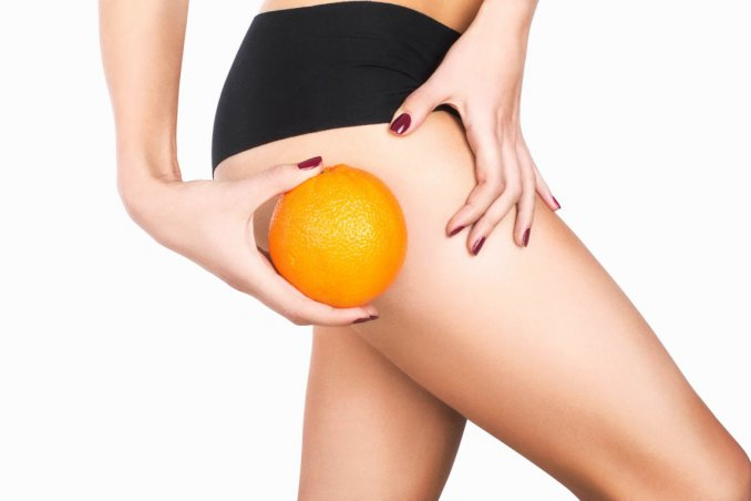 cellulite, ritenzione idrica, rimedi naturali