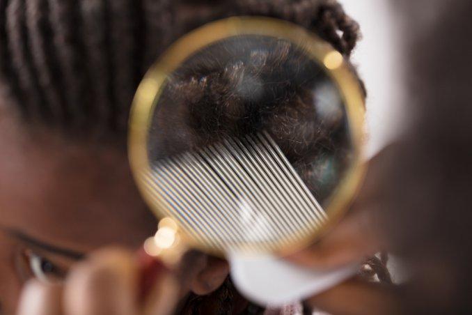 eliminare pidocchi capelli molto ricci, eliminare pidocchi capelli ricci