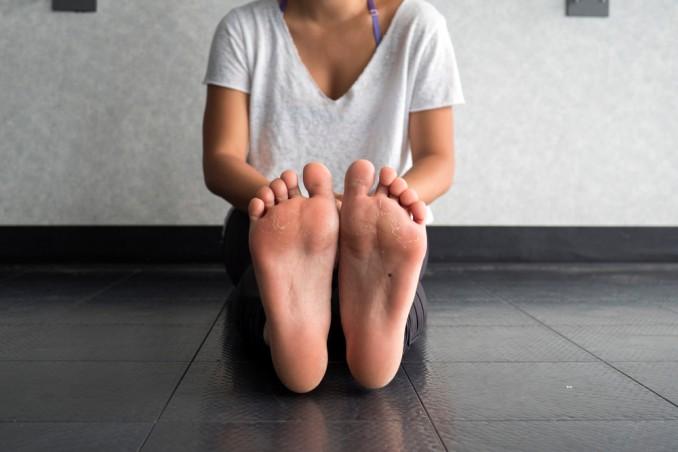 come togliere calli, come togliere duroni, calli piedi