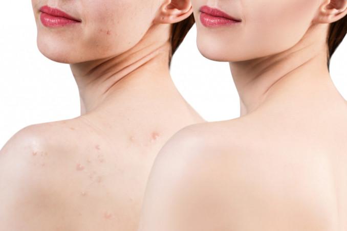 acne corpo