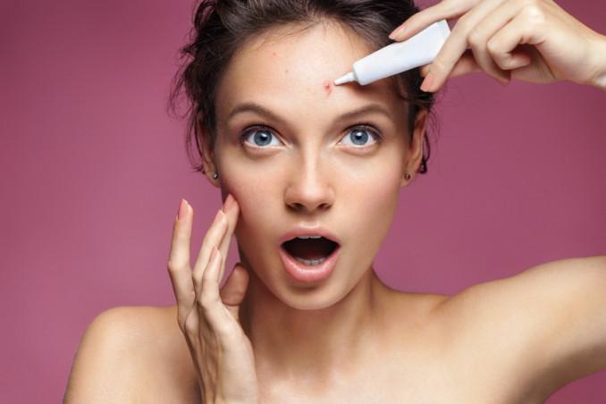 acne giovanile, cause, alimentazione corretta