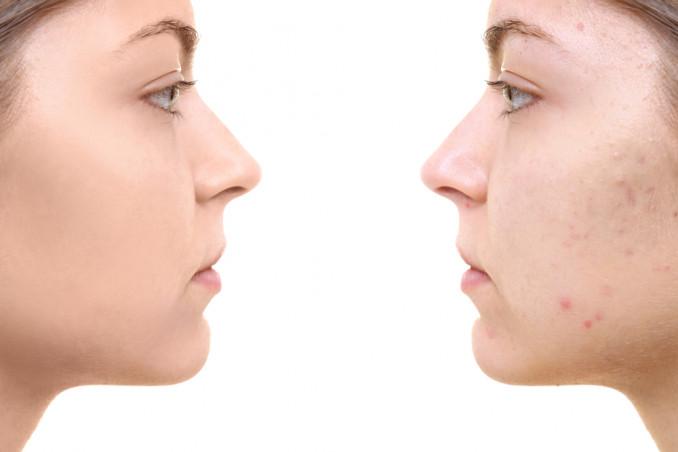 Cicatrici dell'acne